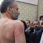 Tunisian lawyer Abdraouf Ayadi shows injuries to his back he claims were caused by police officers on December 29, 2010 after he was Ayadi arrested for supporting protests over unemployment in the central town of Sidi Bouzid.