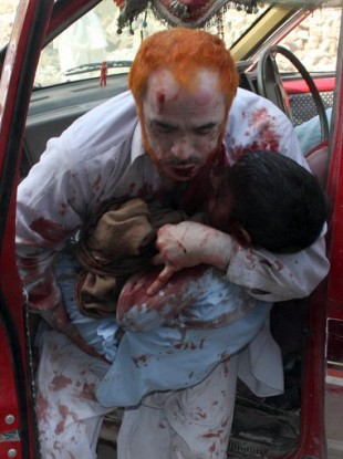 An injured person rushes an injured child to a hospital in Peshawar, Pakistan