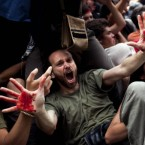 A demonstrator shows his hands covered with blood of a friend at a sit-in protest over high unemployment and financial crisis. Spanish police officers wielded truncheons at them in Barcelona's Plaza de Catalunya where they had set up a makeshift camp. (AP Photo/Emilio Morenatti)