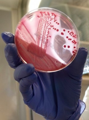 An employee of the laboratory at Hamburg Eppendorf hospital shows a bacterial culture of the EHEC bacterium.