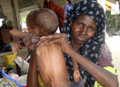 A woman with her malnourished child, in one of the internally displaced camps, in Mogadishu, Somalia, Tuesday, July 5, 2011, after fleeing their homes, due to lack of water and food.