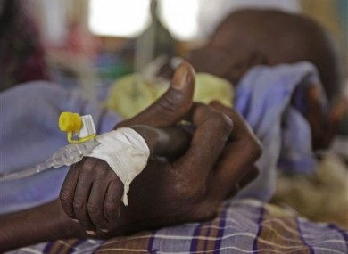 The arm of Mihag Gedi Farah, a seven-month-old child with a weight of 3.4kg, is held by his mother.