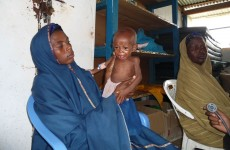 Column: Some of the malnourished children have bodies so swollen they look about to burst