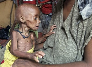 A malnourished child from southern Somalia in a makeshift shelter in a refugee camp in Mogadishu.