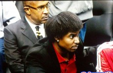 In pics: The evolution of Andrew Bynum's ridiculous hairstyle