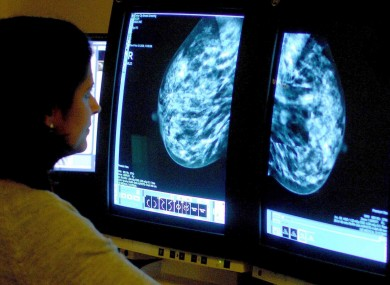 File photo of doctor looking at mammogram.