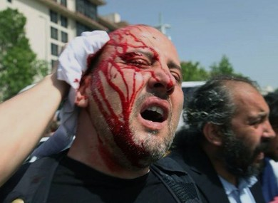 Ahmet Sik, a prominent Turkish journalist, holds his head after being hit by a tear gas cannister.