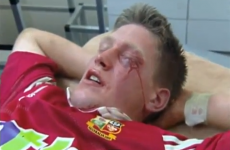 The best and bloodiest bits from the Lions last battle with the Waratahs