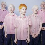 25 September 2013, West Bengal India: A group of blind albino boys photographed in their boarding room at the Vivekananda mission school for the blind. This is one of the very few schools for the blind in India today.<span class=