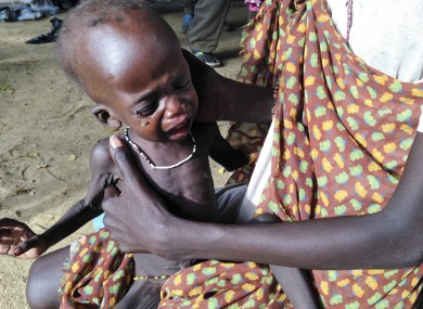 A mother holds her malnourished child at a hospital run by Medecins Sans Frontieres earlier this month.