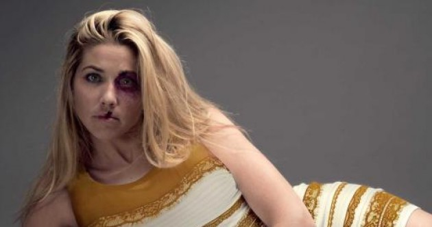 'Why is it so hard to see black and blue?: The Dress takes on domestic violence
