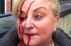 Councillor says protest organisers to blame for woman's injuries – not gardaí
