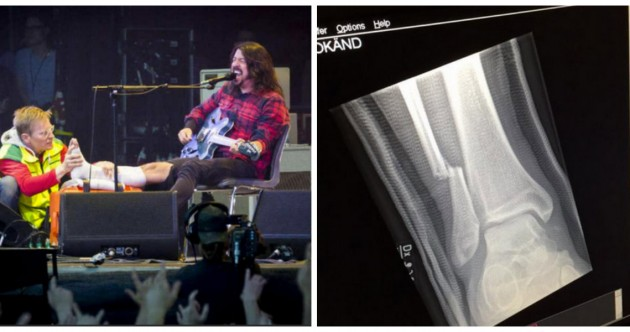 Dave Grohl has broken his leg in concert – and he kept right on playing.