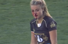 Not even a broken nose could stop this rugby player from smashing her opponent