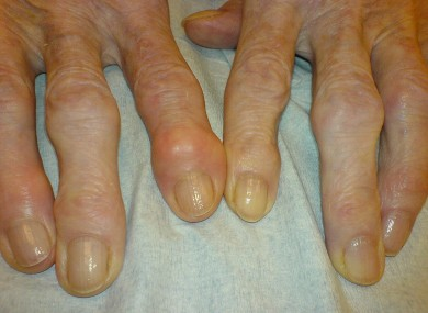A person's hands that have been affected by osteoarthritis