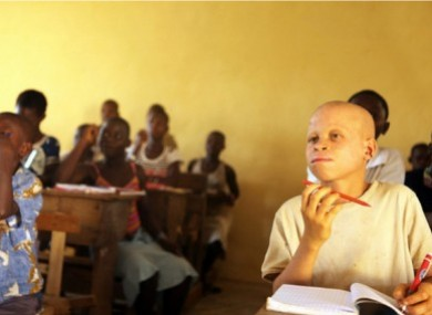 An Albino student (right) attends school in Niambly, near Duekoue, Côte d'Ivoire.