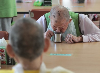 A man with leprosy drinks water at a specialist hospital in South Korea.