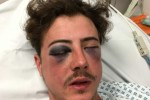 Spurs fan attacked by fellow supporter after 'being mistaken for Chelsea fan'