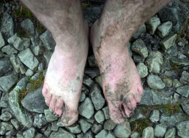 A barefoot pilgrim during the climb of Croagh Patrick.