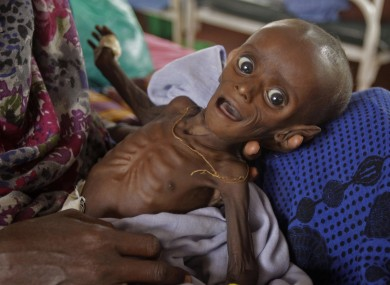 Seven month old Somlai boy Minhaj Gedi Farah is treated in a field hospital in Dadaab, Kenya.