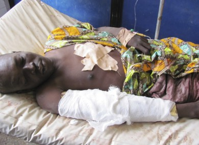 A victim of the attacks lies in a Kano hospital