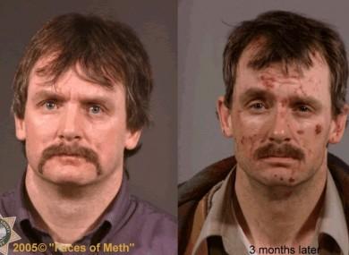Faces of Crystal Meth