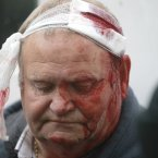 A Loyalist protester waits for medical treatment after being injured in the centre of Belfast. (AP Photo/Peter Morrison)