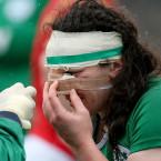 Paula Fitzpatrick gets treatment on a facial injury.<span class=