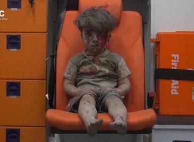 Omran Daqneesh, aged 5.