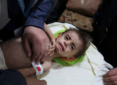 UN treat a malnourished child in a hospital near Damascus
