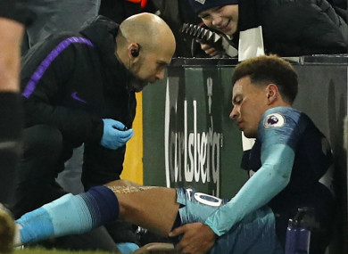 Dele Alli receives treatment for his injury.