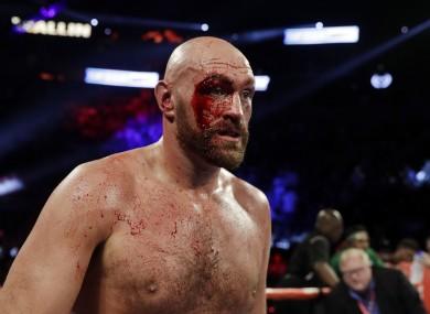 Tyson Fury's eye was cut open.
