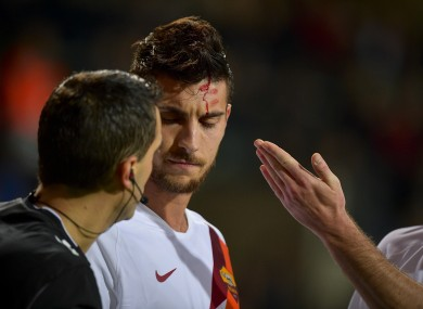 Roma's Lorenzo Pellegrini was hit by coins.